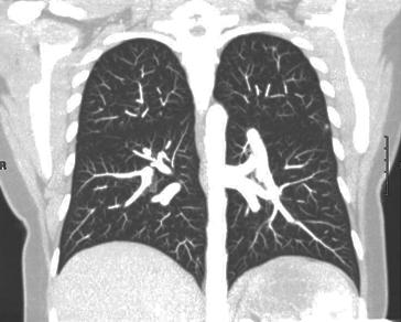 lung-mip